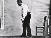 Parkinson's disease patient showing a flexed walking posture pictured in 1892. Photo appeared in Nouvelle Iconographie de la Salpètrière, vol. 5.