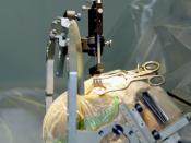 Placement of an electrode into the brain. The head is stabilised in a frame for stereotactic surgery.