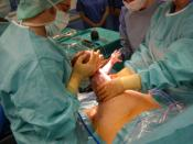 Pull out of the child at Caesarian section Deutsch: Herausziehen des Kindes beim Kaiserschnitt