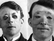 English: Walter Yeo, the first person to receive plastic surgery, before (left) and after(right) skin flap surgery performed by Sir Harold Delf Gillies in 1917. The pictures of Walter's face before the surgery are blurry and hard to come by. In the tragic