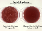 Comparison of two culture media types used to grow Neisseria gonorrhoeae bacteria. Known as overgrowth, note that the non-selective chocolate agar medium on the left, due to its composition, allowed for the growth of organismal colonies other than those o