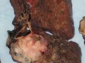 English: Gross appearance of the cut surface of a pneumonectomy specimen containing a lung cancer, here a Squamous cell carcinoma (the whitish tumor near the bronchi).