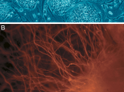English: Embryonic Stem Cells. (A) shows hESCs. (B) shows neurons derived from hESCs.
