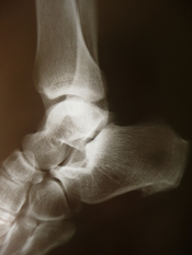 Medical X-rays Plantar fasciitis. Increased density in talocalcaneal joint