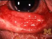 Stevens-Johnson Syndrome affecting the eye