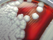 English: Bacillus cereus showing hemolysis on sheep blood agar. B. cereus is a Gram-positive beta hemolytic bacteria, which may live in an environment with or without the presence of oxygen, i.e. facultative aerobe. 日本語: 血液寒天培地上のセレウス菌コロニー. Nederlands: Bac