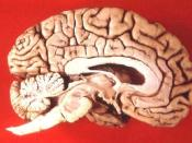 Human brain - midsagittal cut