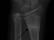 English: A buckle fracture of the radial metaphysis