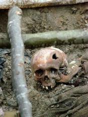 English: Skull of a victim of the July 1995 Srebrenica massacre. Exhumed mass grave outside the village of Potocari, Bosnia and Herzegovina. July 2007.
