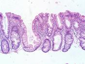 Serrated polyp with abnormal proliferation