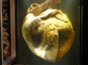 Phar Lap's heart at the National Museum of Australia
