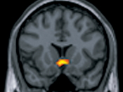 English: Rewarding the Brain. The ventral midbrain is active when humans receive an unpredictable juice reward. Monetary rewards, although defined by cultural agreement, also engage the same subcortical reward processing structures.