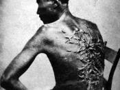 Scars of a whipped slave (April 2, 1863, Baton Rouge, Louisiana, USA. Original caption: