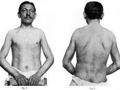 Deutsch: Ein Bild aus Johannes Fabrys Artikel Zur Klinik und Ätiologie des Angiokeratoma. Es zeigt den Patienten Emil Honke 1915 im Alter von 30 Jahren.