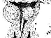 Uterine fibroids Picture