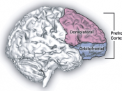 Sagittal human brain with cortical regions delineated.