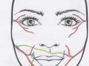 English: Image of the babysitter procedure in facial paralysis.