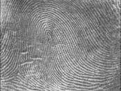 English: Picture of a right loop fingerprint pattern. The bell shaped portion of the loop is leaning medially toward the body. Image source: NIST. Category:Fingerprints