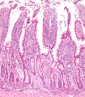 English: Low magnification micrograph of small intestinal mucosa. H&E stain. See also Image:Small intestine neuroendocrine tumour low mag.jpg