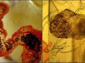 Art? Or Microorganism?