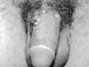 English: Chancres on the penile shaft due to a primary syphilitic infection caused by Treponema pallidum bacteria. The primary stage of syphilis is usually marked by the appearance of a single sore called a chancre. The chancre is usually firm, round, sma