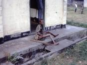 English: Severely malnourished Nigerian refugee being cared for in a refugee camp near the Nigerian-Biafran war zone.