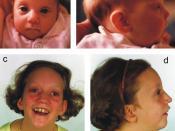 Pitt-rogers-danks syndrome