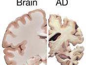 English: A healthy brain compared to a brain suffering from Alzheimer's Disease