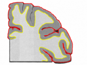 Human cerebral cortex, Brain MRI, Coronal slicess of a hemisphere with gray/white (yellow) and pial (red) surfaces overlaid.