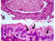 Lung lesions in an African wild dog with canine distemper. Hematoxylin and eosin staining. A. Bronchiole occluded by inflammatory cells and cell debris. B. Detail of A, showing multiple eosinophilic intracytoplasmic viral inclusions (arrows) in bronchiola
