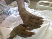 English: Photo of AIDS Patient with crusted Scabies. Patient reported it took 6 months for this to develop after an initial