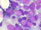 Bone marrow aspirate showing acute myeloid leukemia. Several blasts have Auer rods.