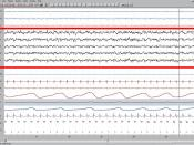 Sleep waves (EEG highlighted above) recorded from those with SSM are indistinguishable from those without.