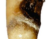 Cervical decay on a premolar