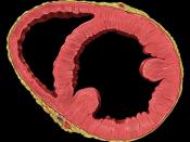 Heart golbal dysfunction short axis view
