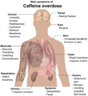 English: Main symptoms of Caffeine overdose (See also Wikipedia:Caffeine#Caffeine_intoxication). References: Caffeine (Systemic). MedlinePlus (). Archived from the original on . Retrieved on . Model: Mikael Häggström. To discuss image, please see