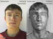 English: Two photographs of a man wearing sunscreen (spf 50) on one half of his face, in visible light (left) and ultraviolet light (UV-A, 340-355nm) (right). The sunscreen on the left side of his face absorbs ultraviolet, making that side appear darker i