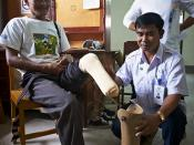 Survivor checks the fit on his prosthetic leg at COPE centre, Vientiane, Kais the Convention on Cluster Munition