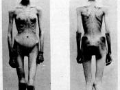 Two images of an anorexic female patient published in 1900 in