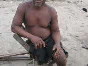 Land mine victim 3
