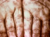 English: This photograph shows a close-up view of keratotic lesions on the palms of this patient's hands due to a secondary syphilitic infection. Syphilis is a complex sexually transmitted disease (STD) caused by the bacterium Treponema pallidum. It has o