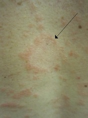 English: A herald patch of pityriasis rosea