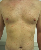English: Pityriasis rosea