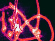 English: Color-enhanced electron micrograph of Ebola virus particles. Polski: Mikrofotografia elektronowa cząsteczek wirusa Ebola w fałszywych kolorach.