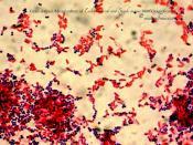 Escherichia coli and Staph. aureus