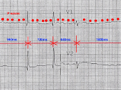 English: Atrial fibrillation with controlled ventricular rate.