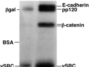 SDS-PAGE autoradiography – The indicated proteins are present in different concentrations in the two samples.