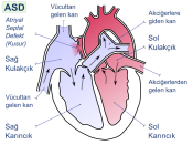 English: Atrial septal defect (ASD) is a form of congenital heart defect that enables blood flow between the left and right atria via the interatrial septum. Türkçe: Atriyal septal defekt (kusur) ya da kısaca ASD (İng.: Atrial septal defect), kalbin sağ v