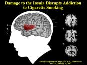 English: Image of the insula