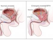 English: Two-panel drawing shows normal male reproductive and urinary anatomy and benign prostatic hyperplasia (BPH). Panel on the left shows the normal prostate and flow of urine from the bladder through the urethra. Panel on the right shows an enlarged